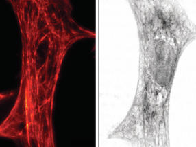 Researchers combine light and X-ray microscopy for comprehensive insights