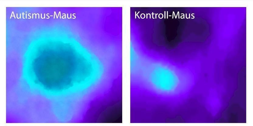 Insular Cortex Alterations In Mouse >> Insular Cortex Alterations In Mouse Models Of Autism