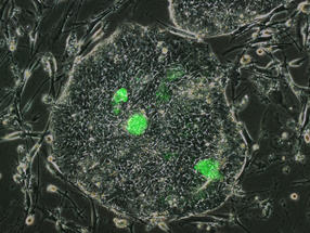 "Researchers Identify ""Naïve-Like"" Human Stem Cells"