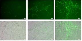 Forscher beobachten Stammzellen im lebenden Gehirn