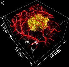 3D-Darstellung von Tumorzellen