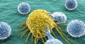 Merck und Pfizer starten Studie zu Avelumab bei Patienten mit nicht-kleinzelligem Bronchialkarzinom