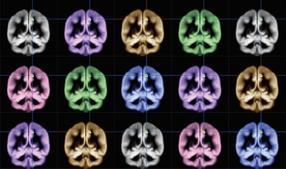 happiness mri brain