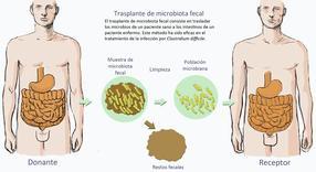 Una nueva técnica mejora la eficacia del trasplante de microbiota fecal intestinal