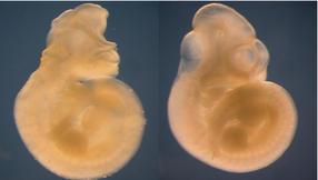 Descubren un gen que protege de las malformaciones causadas por la diabetes materna durante la gestación