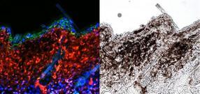 Explaining how UV rays trigger skin cancer