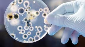 Mikrobilogische Analyse