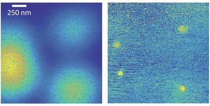 Mikroskopie: auflösung von 30 nanometern erreicht