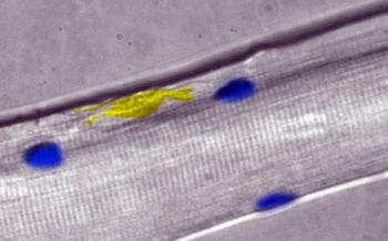 Neues Muskelreparatur-Gen entdeckt