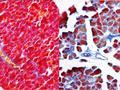 Revelan un nuevo mecanismo molecular implicado en la reparación pancreática
