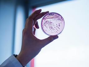 Neuartiges Antibiotikum gegen Problemkeime in Sicht