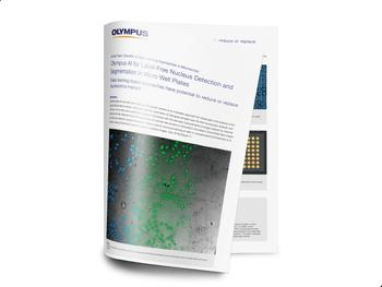 """White paper """"Benefits of Deep Learning Approaches in Microscopy"""""""
