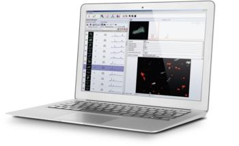 ParticleScout – an advanced analysis tool for faster detection, classification and identification of microparticles
