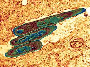 Modifizierter Tuberkulose-Impfstoff gegen Blasenkrebs