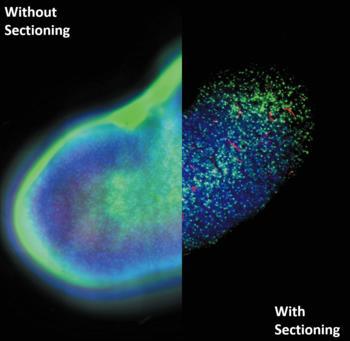 Selbst dicke Proben lassen sich mithilfe des optischen Sectionings einfach untersuchen, ohne dabei die Probe durch einen Laser zu beschädigen.