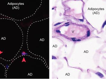 Nachweis von Eosinophilen in menschlichem Bauchfett mittels zwei unterschiedlicher Färbungen. Die Eosinophile sind mit einer Pfeilspitze markiert. AD: Adipozyten (Fettzelle), V: Blutgefäss.