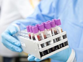 Blood-based test accurately identifies viral infection before symptoms develop