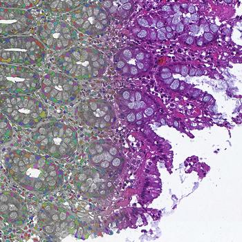 Cell Segmentation: Development of AI powered image analytics for segmentation and classification of cells and tissues for H&E and immunostained Whole Slides