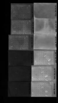 Protein Subarray nach Inkubation mit Serum und Zweitantikörper und Reaktion mit fluoreszierendem Substrat