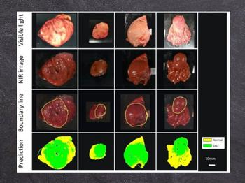 The machine learning technique developed by Dr. Takemura and team could distinguish tumor tissue from healthy tissue in ex vivo images of resected tumors, with 86% accuracy.