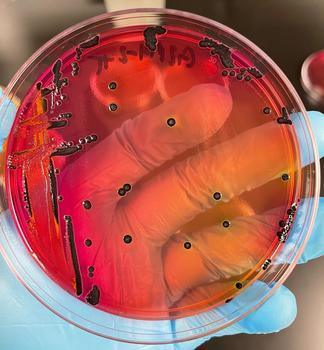 Salmonellenkolonien, die auf Rotindikatorplatten wachsen.