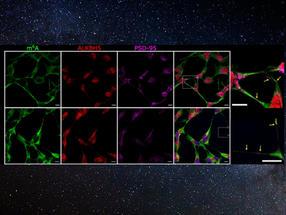 Die Demethylierung von RNA-Botschaften erfolgt während der synaptischen Aktivierung