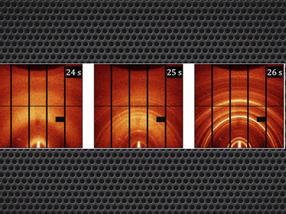 Una nueva técnica del Advanced Light Source revela lo que ocurre (de izquierda a derecha) en el segundo antes, durante y después de que una gota de un agente solidificador transforme una solución líquida precursora en un material solar de perovskita.