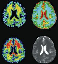 MRT-Bildgebung des Gehirns