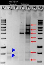 molzym-sepsis-03