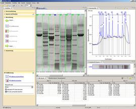 Biostep-ViewPix-Abb5
