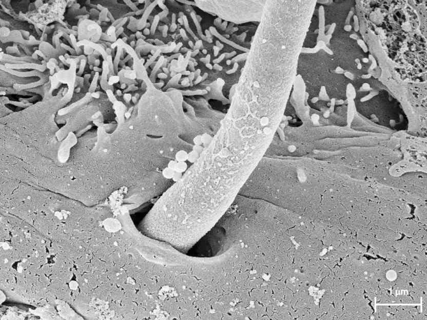 Кандида гриб фото